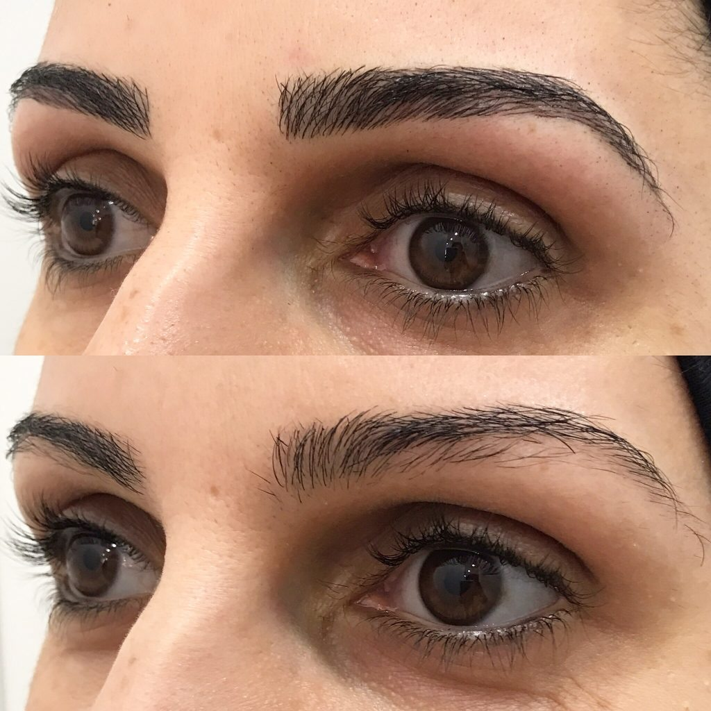 Eyebrow Feathering Gallery Eyebrow Feathering Before And Afters