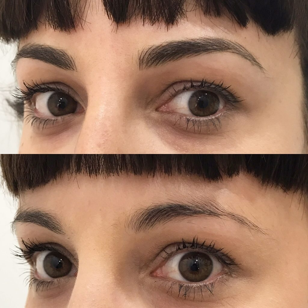 Eyebrow Feathering Gallery | Eyebrow Feathering Before and ...